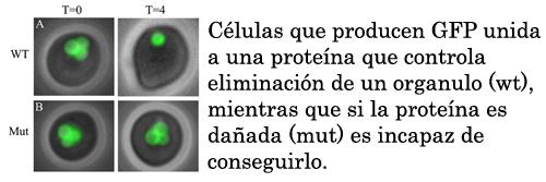Celulas que producen GFP-SKL wt o mutada enperoxisomas