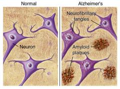Placas de agregados en la enfermedad de Alzheimer